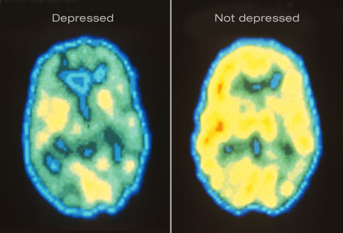 How To Overcome Depression Naturally